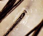healthy scalp pores image